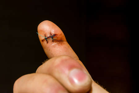 On the finger was founded two non-absorbable surgical sutures. Stock Photo