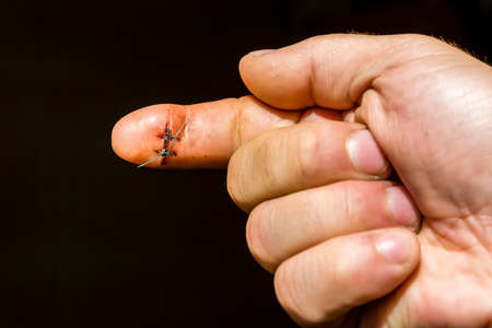 finger on trigger: On one finger of the hand they are founded two non-absorbable surgical sutures. Stock Photo