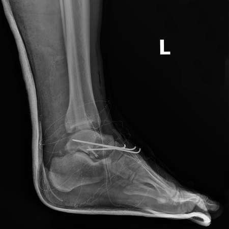 dislocation: X-ray of the left foot after surgery of a joint dislocation ankle. Stock Photo