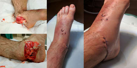 Open joint dislocation ankle - Injury before surgery and operation.