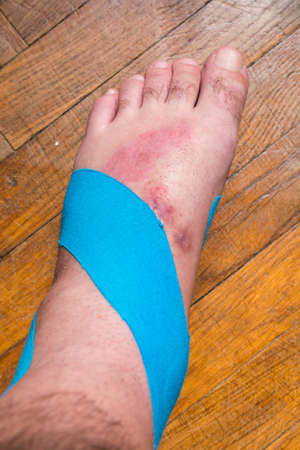 Elastic therapeutic tape (Kinesio Taping) on the left leg of the man.