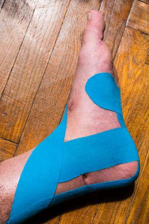 Cinta terapéutica elástica (Kinesio Taping) aplicada a la pierna del paciente.