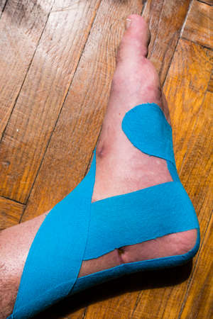 Elastic therapeutic tape (Kinesio Taping) applied to patients leg.