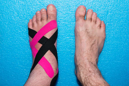 taping: Elastic Therapeutic Tape - Applications rehabilitation on foot after injury.
