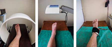 Physical therapy set of exemplary ankle procedures: Magnet therapy, Low level laser therapy, Iontophoresis.  Stock Photo