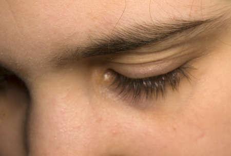 Eye Stock Photo - 8961602