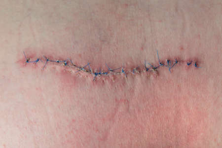 acus: scar from operation suturated with a blue fiber