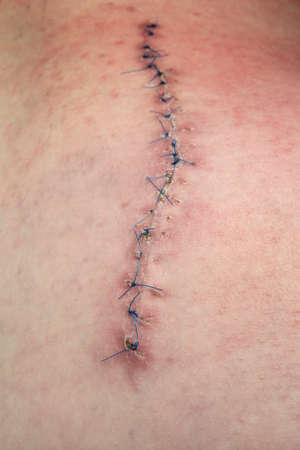 gash: scar from surgery suturated with a blue fiber Stock Photo