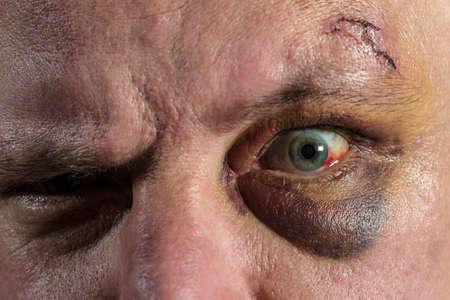 shiner black eye Stock Photo