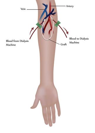 enten: Hemodialyse procedure. Gebruikt op de nierinsufficiëntie.  Stock Illustratie