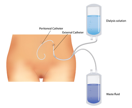 Peritoneal dialysis procedure. Used for the renal insufficiency.