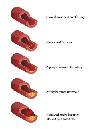 Atherosclerosis illustration. High cholesterol. Blood clot.