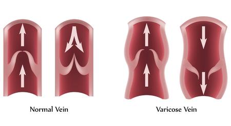 ventile: Krampfadern und normalen Vene Illustration.