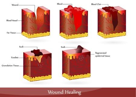 dermatologo: Il processo di guarigione della ferita. Illustrazione che mostra la pelle dopo la ferita, appare sangue, poi il coagulo di sangue, poi croste.