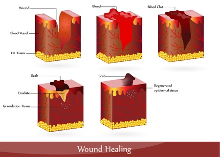 wound: The process of wound healing. Illustration showing skin after injury, appears blood, then blood clot, then scab.