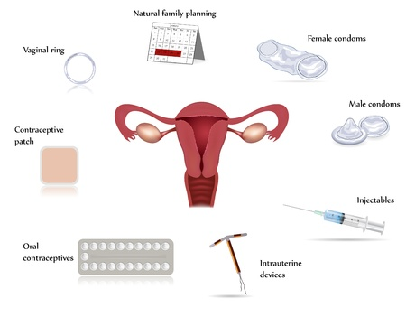 uterine: Contraception methods