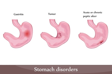 intestinal cancer: Stomach disorders- peptic ulcer, gastritis, tumor. Detailed diagram. Illustration