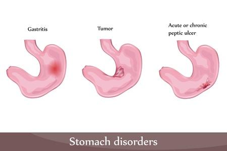 ulc�re: Troubles d'estomac, ulc�re, gastrite, tumeur. Sch�ma d�taill�.