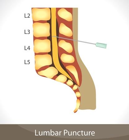 脊椎: 腰椎穿刺