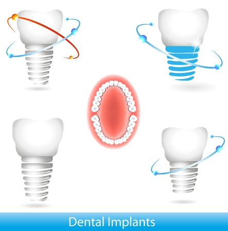 Dental implants. Beautiful bright colors  Vector