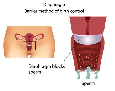 menstruacion: Barrera método anticonceptivo con diafragma. Detallada anatomía del aparato reproductor femenino. Vectores
