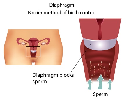 Barrier contraceptive method- Diaphragm. Detailed female reproductive anatomy.