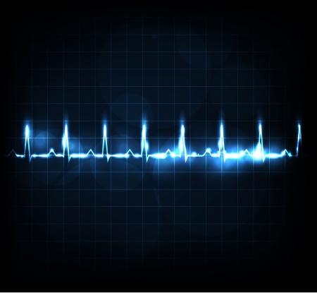 electrocardiograma: Monitorización del ritmo cardiaco brillante Hermoso diseño