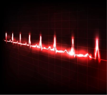 electrocardiograma: Monitor cardíaco superando Hermoso brillante diseño