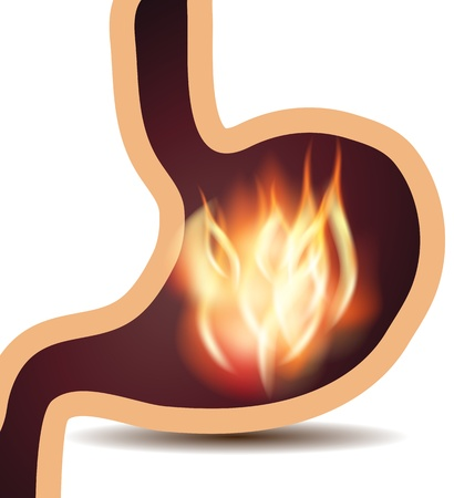 stomach pain: Stomach disorder concept  Fire in human stomach, isolated on a white background