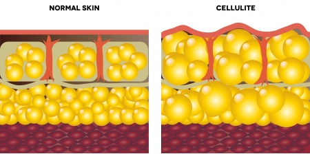 cells biology: Cellulite and normal skin  Medical illustration, isolated on a white background