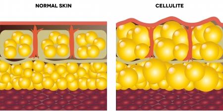 La cellulite e la pelle normale illustrazione medica, isolato su uno sfondo bianco