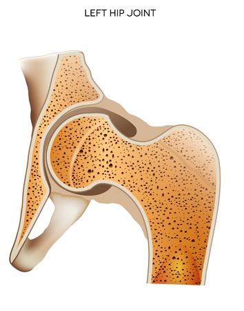 osteoporosis: Articulación de la cadera ilustración, médico detallado aislado en un fondo blanco