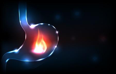 digestive health: Est�mago concepto trastorno. Fuego en el est�mago humano