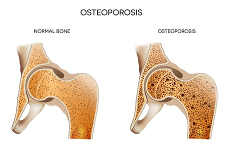 Osteoporosis Ilustración médica huesos saludables y no saludables los huesos osteoporosis La osteoporosis puede lleva a la fractura ósea Ilustración de vector