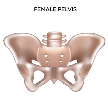 hip fracture: Mujer huesos de la pelvis de la extremidad ilustraci�n m�dica detallada menor Aislado en un fondo blanco Dise�o brillante y limpio