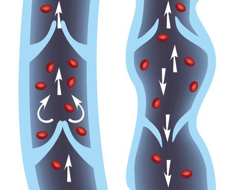 보통 정맥과 정맥류 그림입니다. 정맥 부족, 정맥류 의료 그림을 정맥.