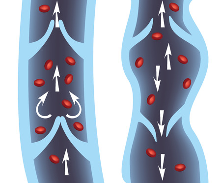 blood circulation: Normal vein and varicose vein illustration. Venous Insufficiency, varicose veins medical illustration.