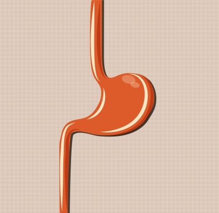 chronic gastritis: Human stomach, simple medical illustration, bright orange color. Illustration