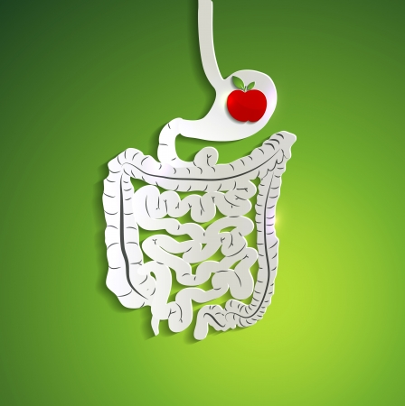 tract: Apple in human stomach, medical illustration of stomach.