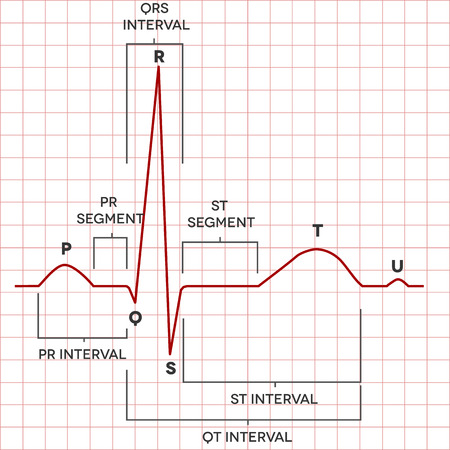 medical record: Human heart normal sinus rhythm, electrocardiogram record. Medical illustration.
