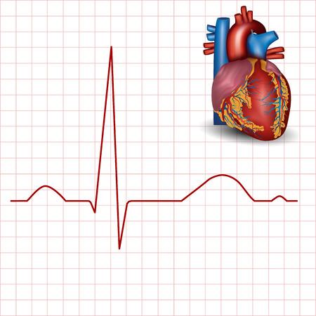 infarctus: Le rythme cardiaque et le c?ur humain normal anatomie, �lectrocardiogramme fiche