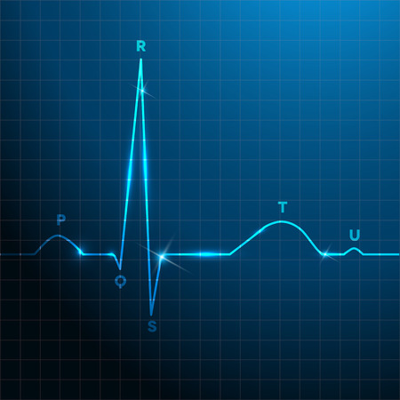 sinus: Normal heart rhythm blue background design with light shades