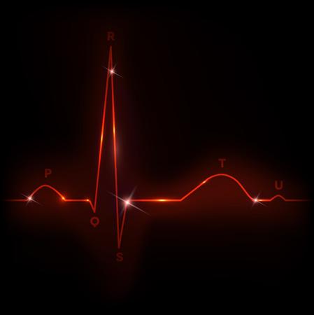 angina: Normal heart cardiogram illustration, bright red color Illustration