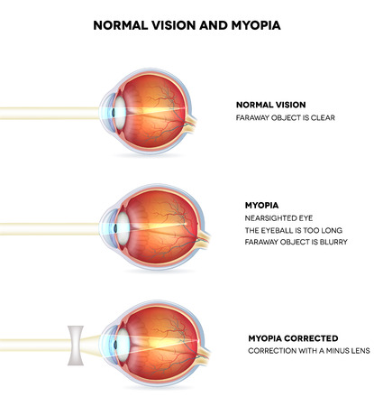 minus: Myopia and normal vision. Myopia is being shortsighted. Myopia corrected with minus lens. Anatomy of the eye, cross section. Detailed illustration.