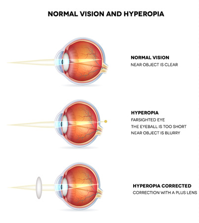 farsighted: Myopia and normal vision. Hyperopia is being farsighted. Illustration shows hyperopia corrected with a plus lens. Anatomy of the eye, cross section. Detailed illustration.