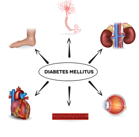 complications: Diabetes mellitus affected areas  Diabetes affects nerves, kidneys, eyes, vessels, heart and skin  Illustration
