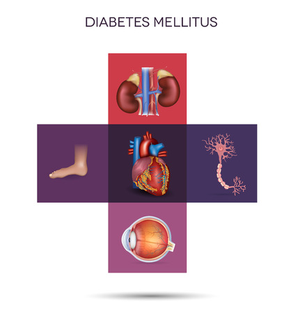 tipos: La diabetes mellitus áreas afectadas diabetes afecta los nervios, los riñones, los ojos, los vasos, el corazón y la piel Vectores