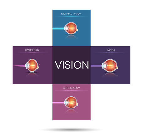 farsighted: Vision disorder artistic illustration, sight disorders in a cross shape blocks