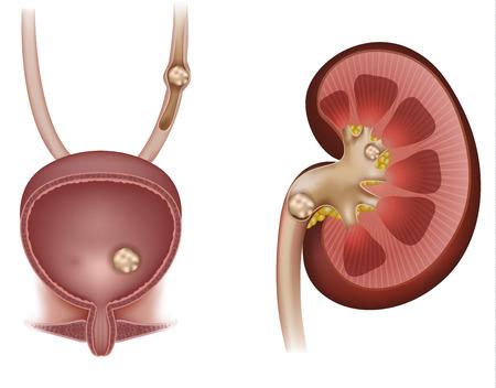 Piedras en el riñón, la vejiga urinaria y la uretra. La ilustración detallada de la anatomía de la sección transversal del riñón y la sección transversal de la vejiga urinaria Ilustración de vector