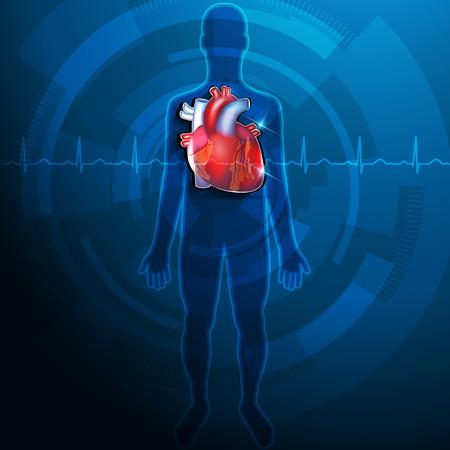 infarctus: Silhouette humaine et grand coeur r�aliste fond abstrait Illustration